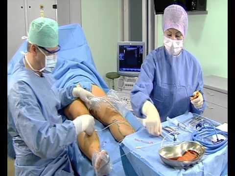 операция по удалению жира с живота