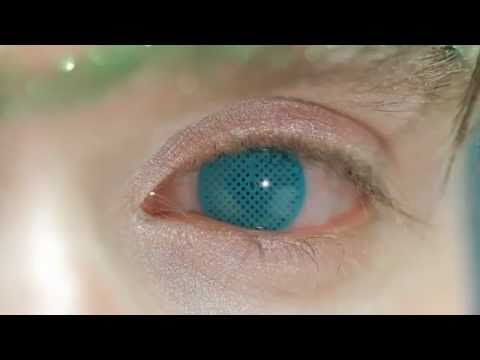 Aqua Mesh Coloured Contact Lenses Youtube