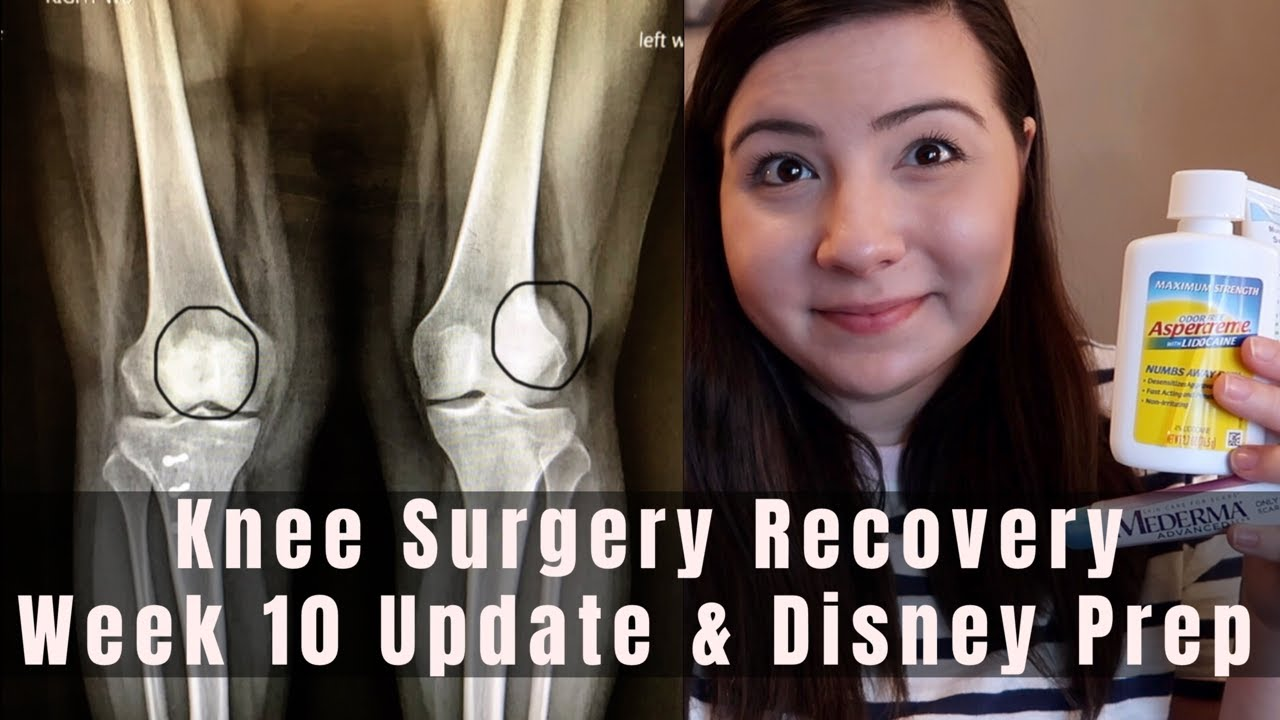 Download Knee Surgery Recovery 10 Week Update & Disney Preparation | TTO, MPFL, OCA & Lateral Lengthening