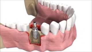 How DENTAL IMPLANTS are inserted | 3D simulation
