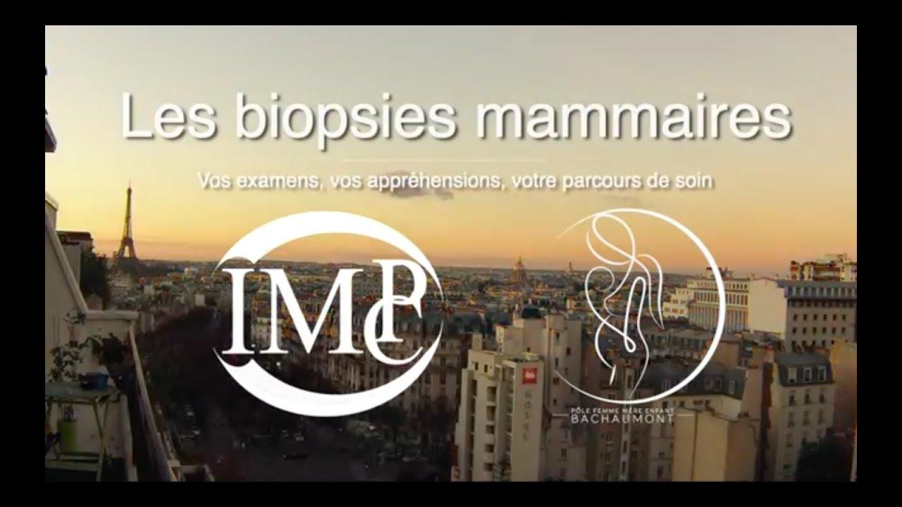 Les biopsies mammaires - biopsie sein