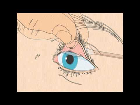 How to remove a foreign body from the eye