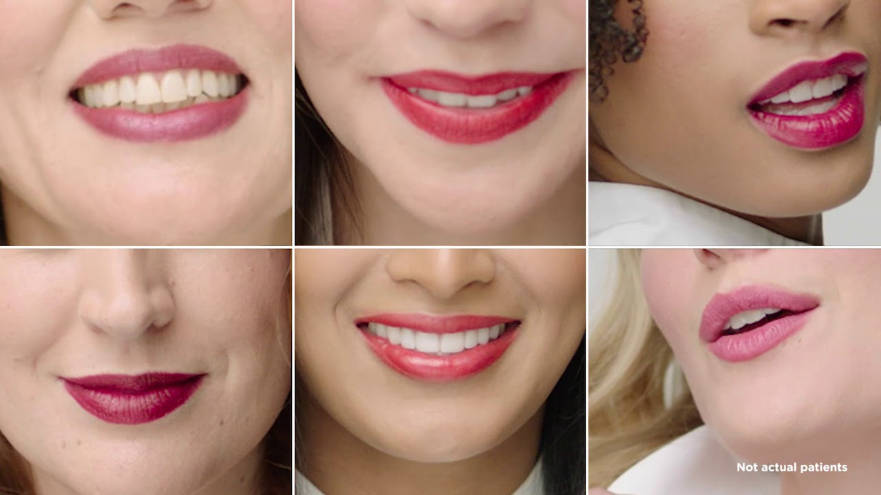 lip augmentation Archives - Laser and Skin Surgery Center of