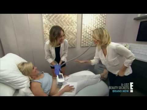 coolsculpting-non-invasive-fat-reduction-for-coral-gables-&-miami---e!-special-a-list-beauty-secrets