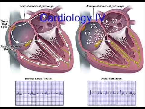 Arritmias cardiacas - Comunidad UNFV