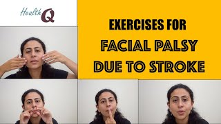 EXERCISES FOR STROKE RELATED FACIAL PALSY