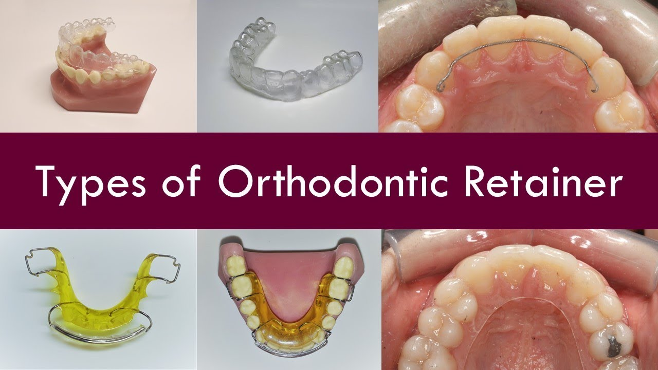 What types of Orthodontic Retainer are there? | Dr  Jiten Vadukul | The  Orthodontist