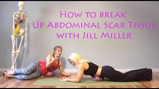 Video (How To Get Rid of Abdominal Scar Tissue with Jill Miller) download MP3, 3GP, MP4, WEBM, AVI, FLV Juli 2018
