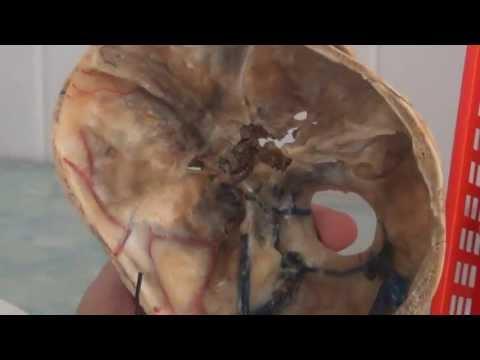Тройничный нерв – причины и симптомы неврита (воспаления