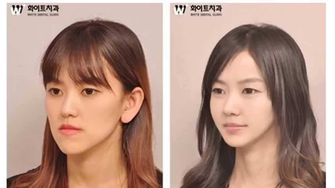 Cantantes coreanas antes y despues de adelgazar