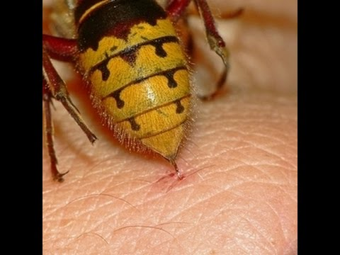 Why Do Insect Stings Hurt?