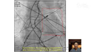 Expert Perspective with Felix Yang, MD, FHRS, CCDS: EsoSure Esophageal Deviator