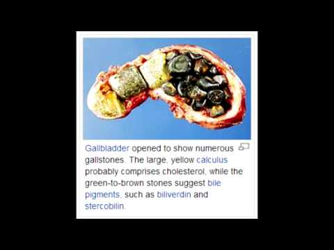 Cholelithiasis (gallstones) - Clinical Presentation