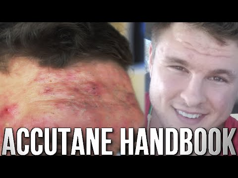 hqdefault - Accutane And Upper Back Pain
