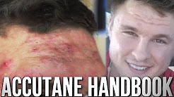 hqdefault - Accutane Side Effects Back Pain