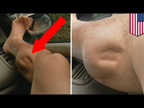 Muscle Cramps Explained Whats Causing This Guys To Spasm Horrifi