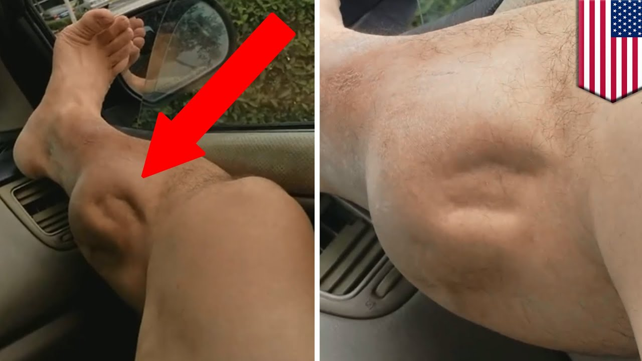 Muscle Cramps Explained Whats Causing This Guys Leg To Spasm