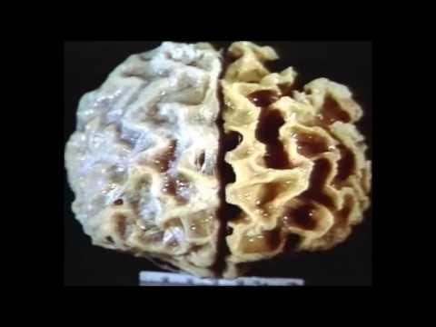 Creutzfeldt Jakob Disease - Hadaya Gelle
