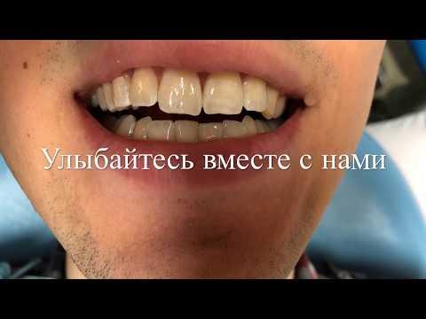 Лечение кариеса по методике Icon (Айкон) в Москве