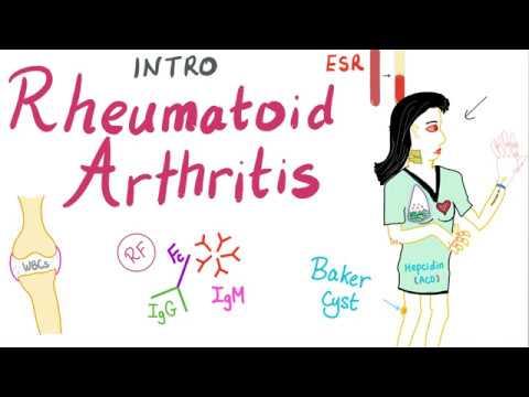 rheumatoid-arthritis-(ra)-part-1:-introduction