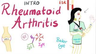 Rheumatoid Arthritis (RA) Part 1: Introduction