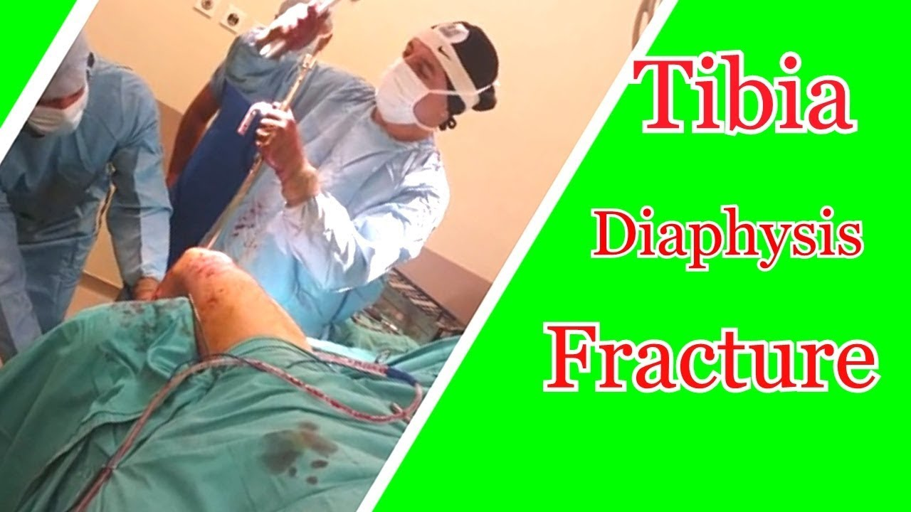 Tibia Diaphysis Fracture (Hammering the Nail )