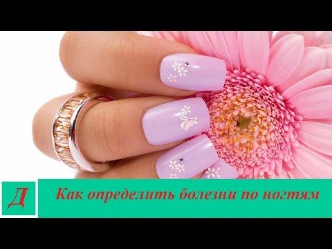 Болезни по ногтям - как их распознать