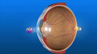 Secondary Cataracts or Posterior Capsule Opacification (PCO)