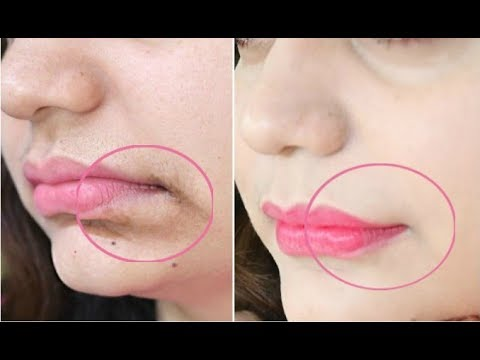 This 1-Minute Technique will Remove Mouth Wrinkles & Lift Corners Of Your Mouth Instantly