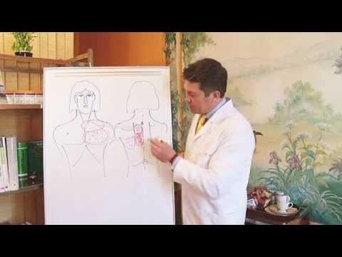 Остеохондроз и защемление нерва: виды, симптомы и лечение