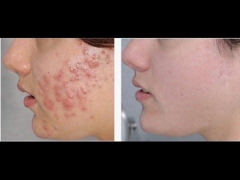causas de acne severo