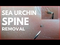 Sea urchin spine removal in finger.