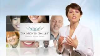 Six Month Smiles With Dr  Michael Wong Thumbnail