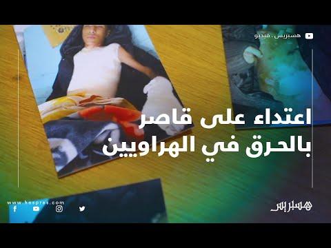 الهراويين.. قاصر يتعرض للحرق بالبنزين من طرف أقرانه