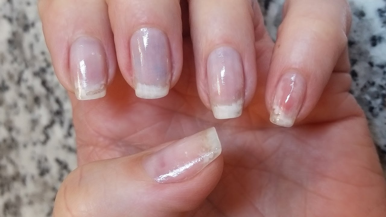 Good-bye gel nails, hello natural - nail care! any damage? - YouTube