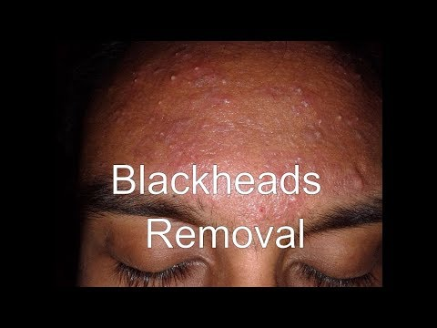 nasty-blackheads-removal:-disgusting-cysts,-dark-skin-lesions
