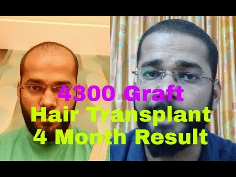Best Result of Hair Transplant In 4 Months - Best Clinic & Doctor in India For Hair Transplant
