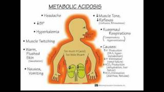 Komplikasi Diabetes Melitus : Patofisiologi KAD dan HHS.