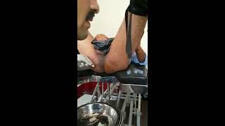 Anal dilatation for fissure