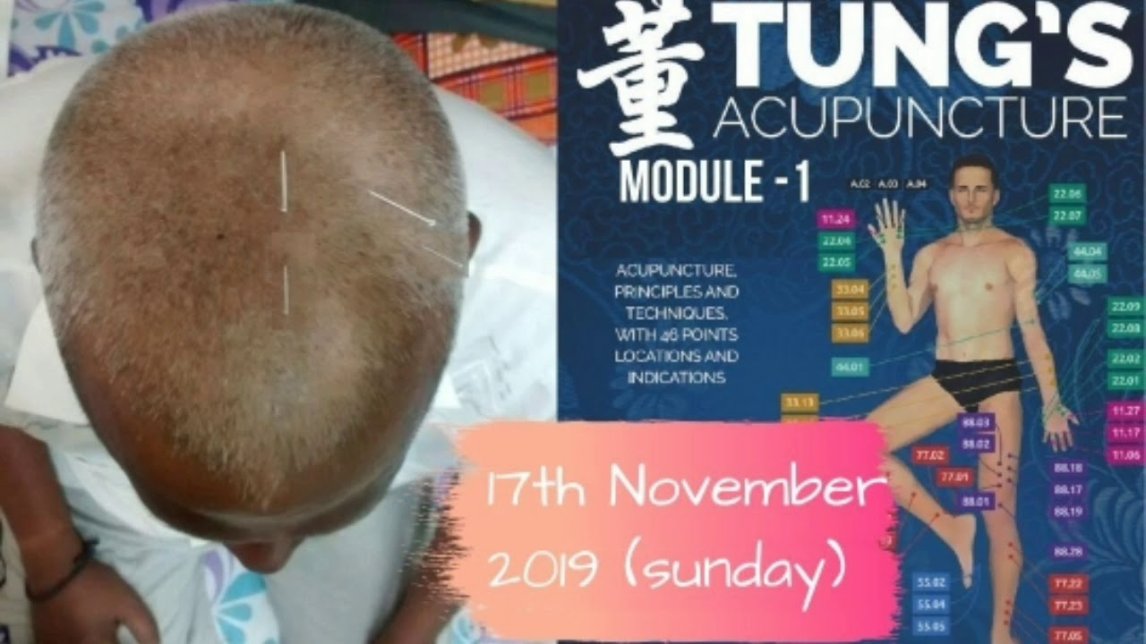 Acupuncture workshop l Chinese treatment coming to India l Acupuncture in India