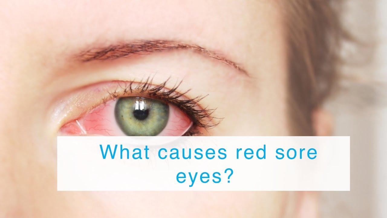 reasons behind sore eyes Eye nose hair ingrown hair mouth gums nails  reasons for painful sore on roof of mouth  sore on roof of mouth behind teeth.