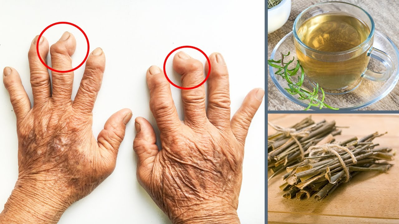 2 proven home remedies for arthritis and joint pain - youtube
