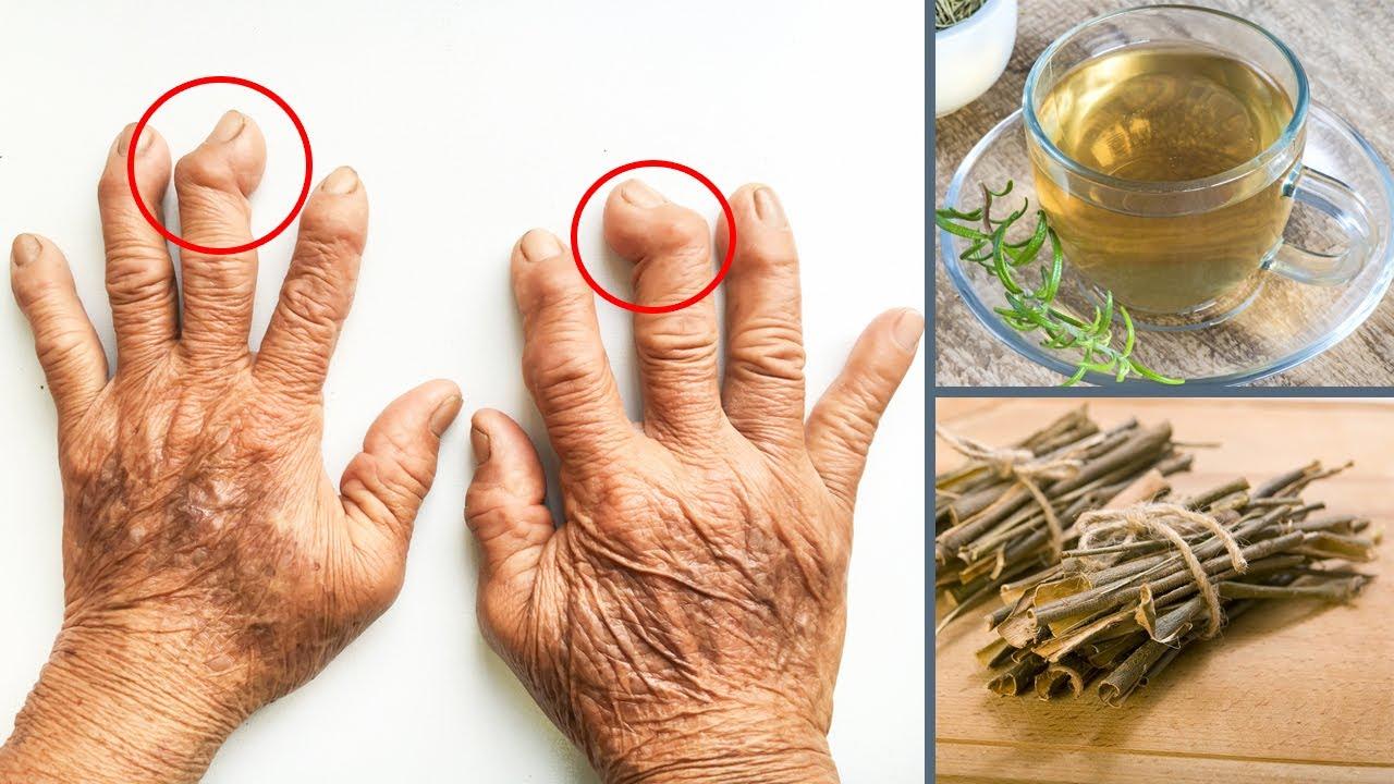 Alternative Treatments for Arthritis Alternative Treatments for Arthritis new photo