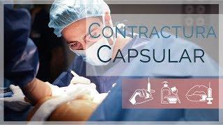 ¿Qué es una contracutura capsular? | Dr. Godoy | Clínicas LeClinic's