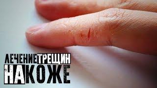 Лечение трещин на коже