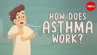 видео 300 млн людей страдают бронхиальной астмой
