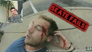 Kaykay Kazaları Tehlikeli kazalar ( Skate Fail )
