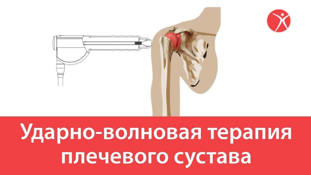 Ударно-волновая терапия плечевого сустава. Мультик