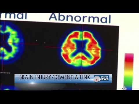 Study On Brain Injury Being Link To Dementia