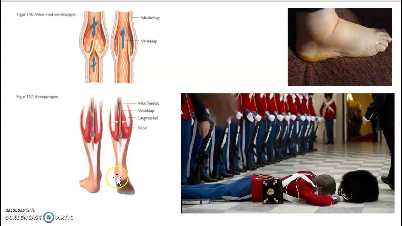 Krop og bevægelse - venesystemet og blodtryk